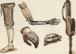 History of Prosthesis in Vedas and Literature