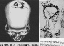 History of Brain Surgery (Trepanation) since 7000 BCE