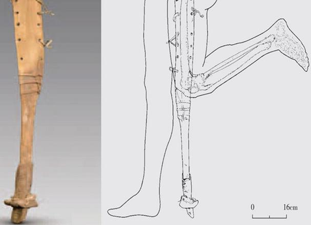 2200 years old chinese prosthetic leg