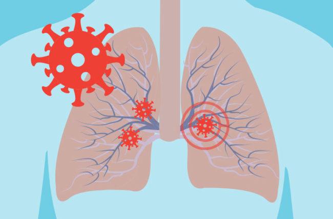 Coronavirus Lungs attack