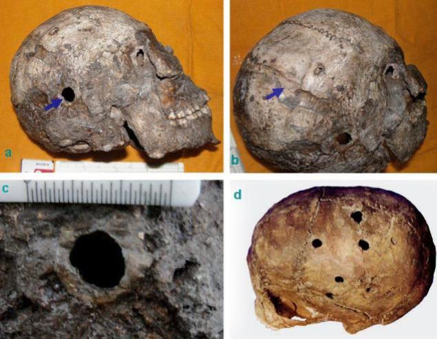 2300 BCE harappa brain surgery trepanation