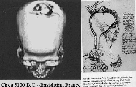 ancient brain surgeries trepanation france davinci